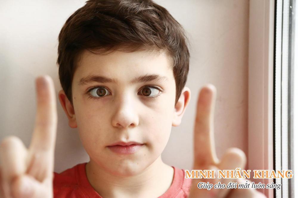 Mắt lác là một triệu chứng của đục thủy tinh thể ở trẻ em